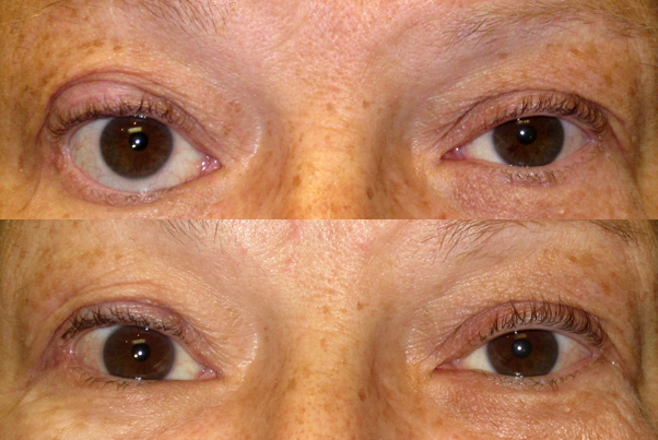 Before (upper) photo and After TarSys implant on the lower eyelid