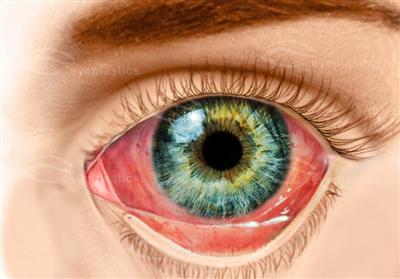 Conjunctivitis Bacterial Viral Allergic